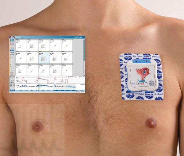 LiveECG Patch Langzeit-EKG Recorder-Set