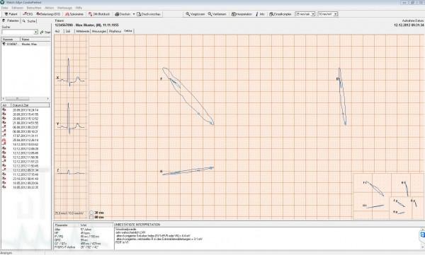 Vektorkardiographie Modul für Cardio Perfect Ruhe-EKG