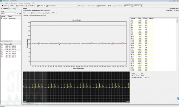Heart Rate Variability (HRV) Modul für Cardio Perfect EKG